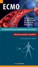 ECMO – Extrakorporální membránová oxygenace
